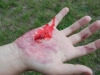 cudzie teleso dlane